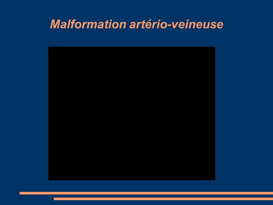 Malformation artério-veineuse