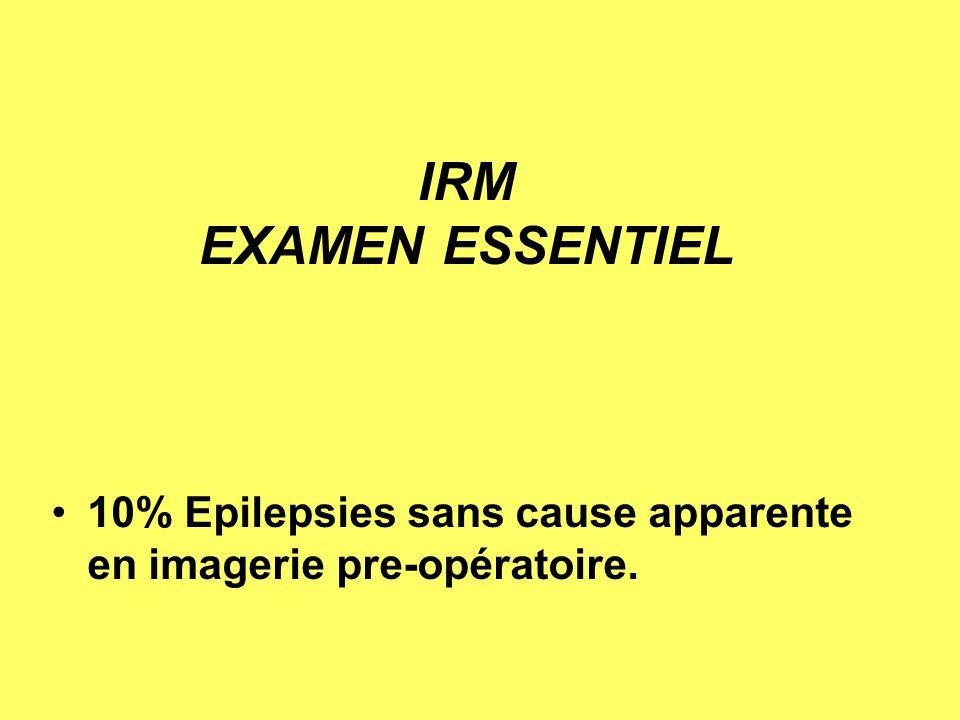 IRM EXAMEN ESSENTIEL 10% Epilepsies sans cause apparente en imagerie pre-opératoire.