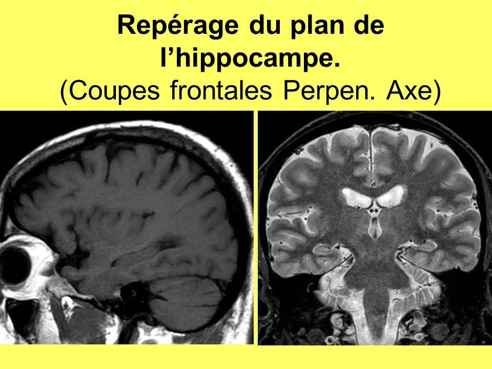 Repérage du plan de l'hippocampe. (Coupes frontales Perpen. Axe)