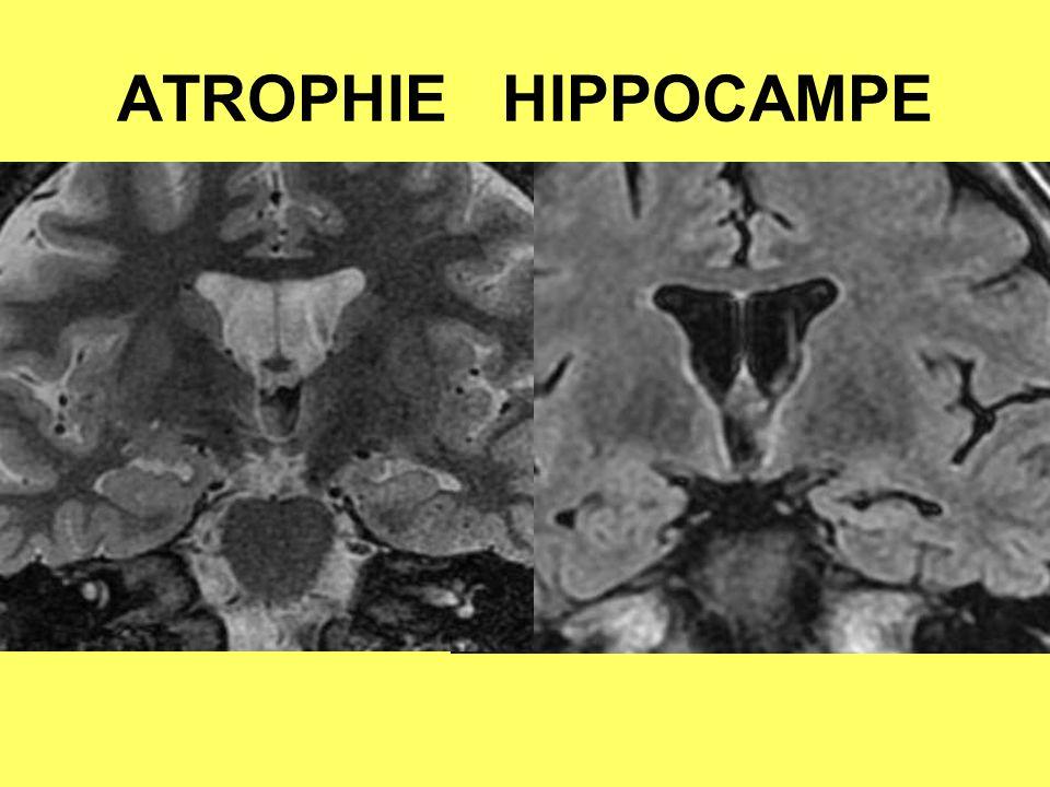 ATROPHIE HIPPOCAMPE