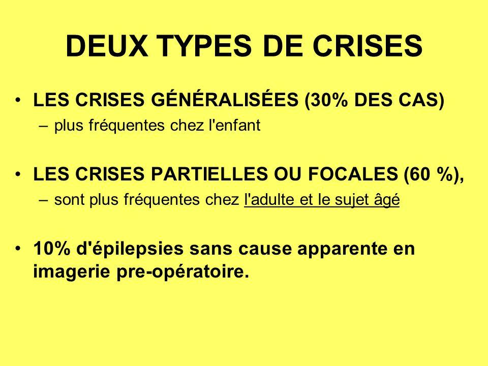 DEUX TYPES DE CRISES LES CRISES GÉNÉRALISÉES (30% DES CAS)