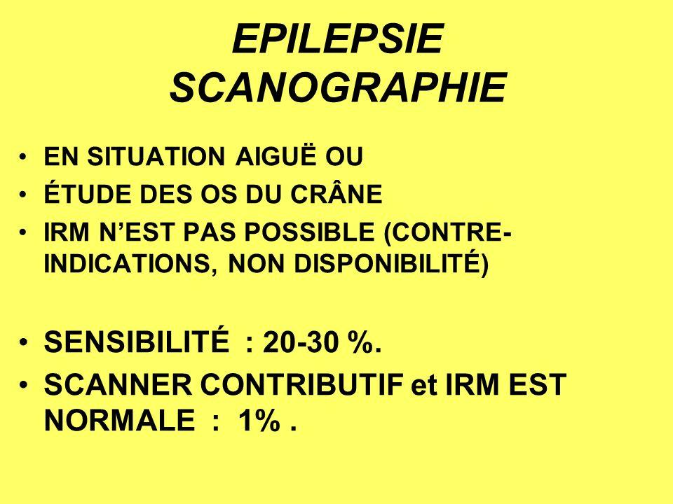 EPILEPSIE SCANOGRAPHIE