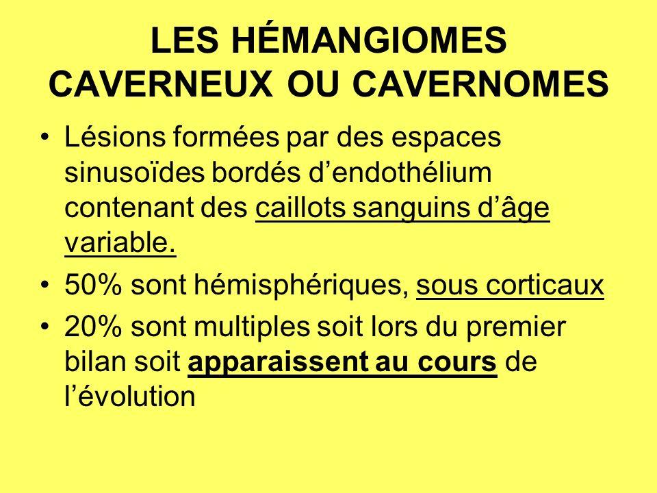 LES HÉMANGIOMES CAVERNEUX OU CAVERNOMES