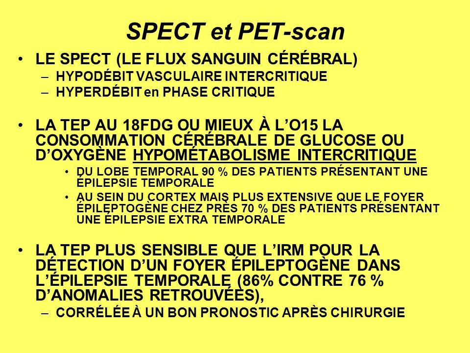 SPECT et PET-scan LE SPECT (LE FLUX SANGUIN CÉRÉBRAL)