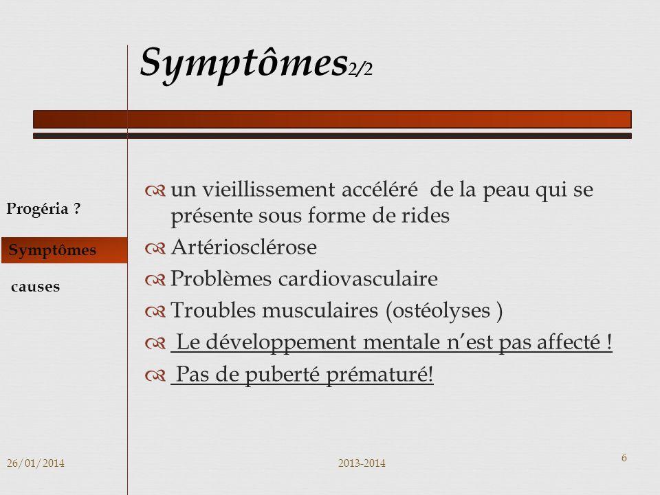 Symptômes2/2 un vieillissement accéléré de la peau qui se présente sous forme de rides. Artériosclérose.