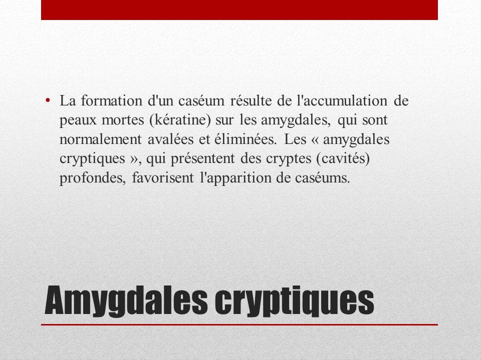 La formation d un caséum résulte de l accumulation de peaux mortes (kératine) sur les amygdales, qui sont normalement avalées et éliminées. Les « amygdales cryptiques », qui présentent des cryptes (cavités) profondes, favorisent l apparition de caséums.
