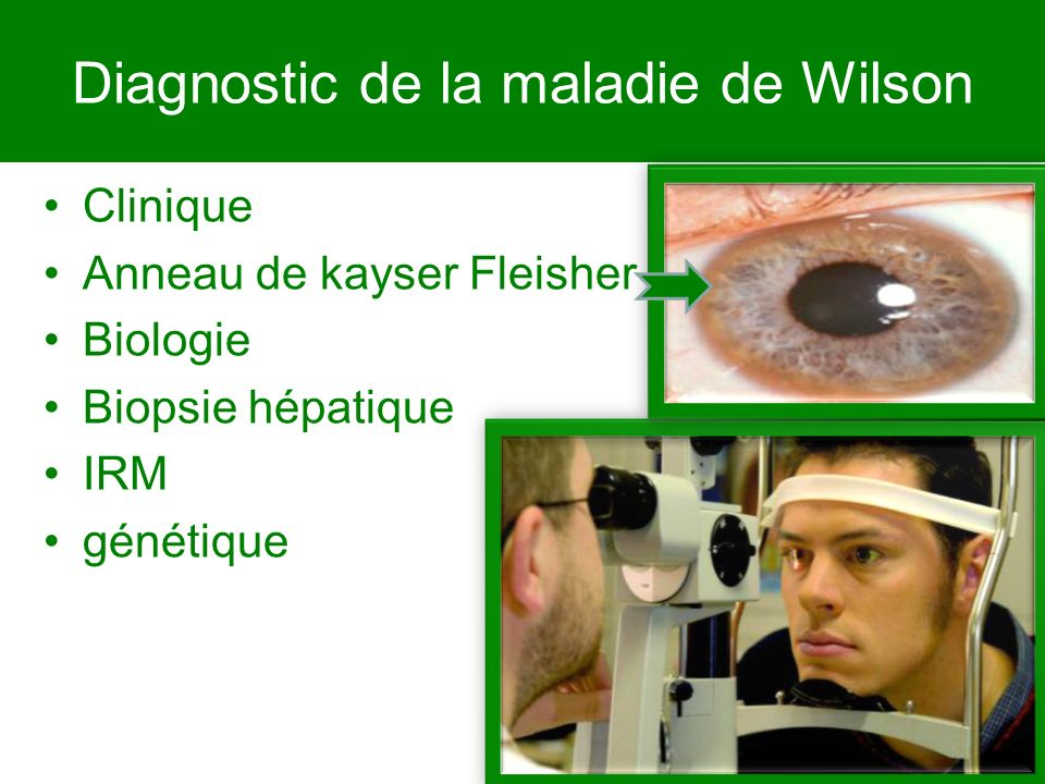 Diagnostic de la maladie de Wilson