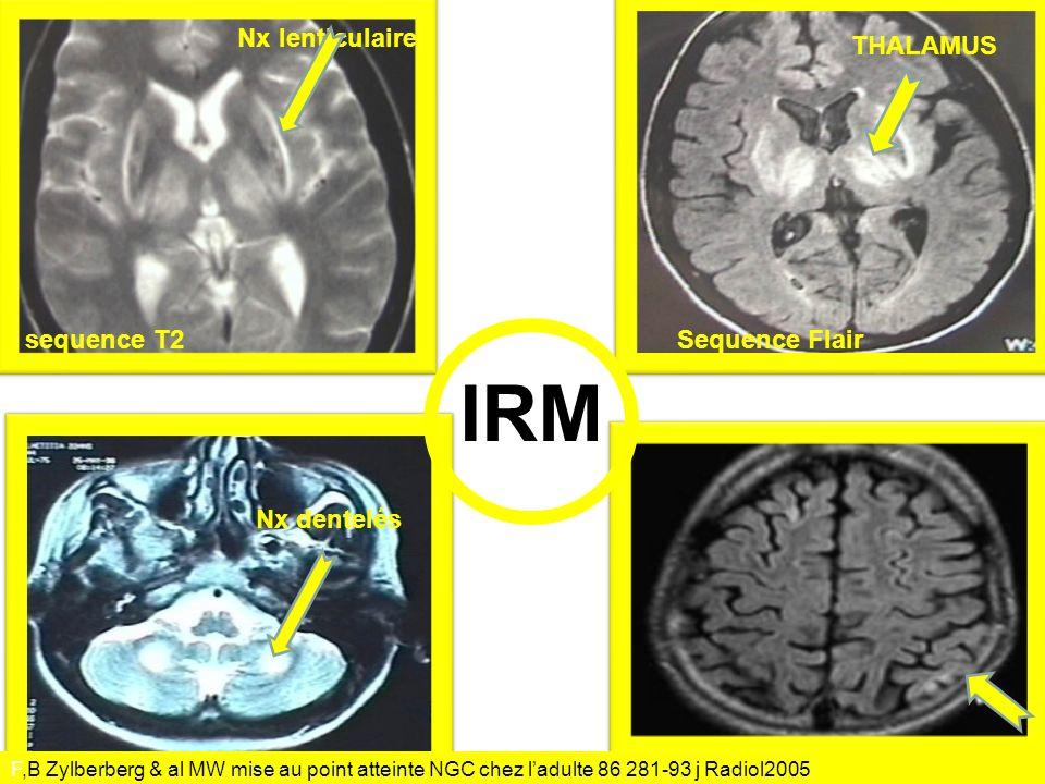 IRM Nx lenticulaire THALAMUS sequence T2 Sequence Flair Nx dentelés
