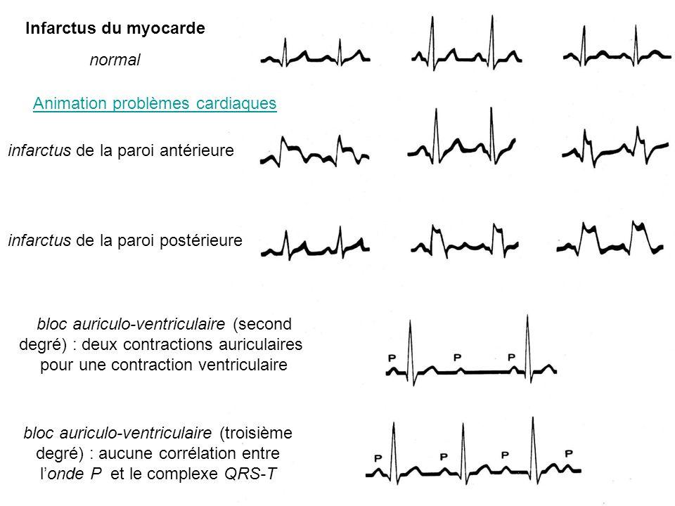 Animation problèmes cardiaques