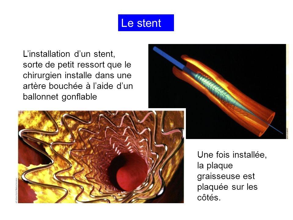 Le stent L'installation d'un stent, sorte de petit ressort que le chirurgien installe dans une artère bouchée à l'aide d'un ballonnet gonflable.