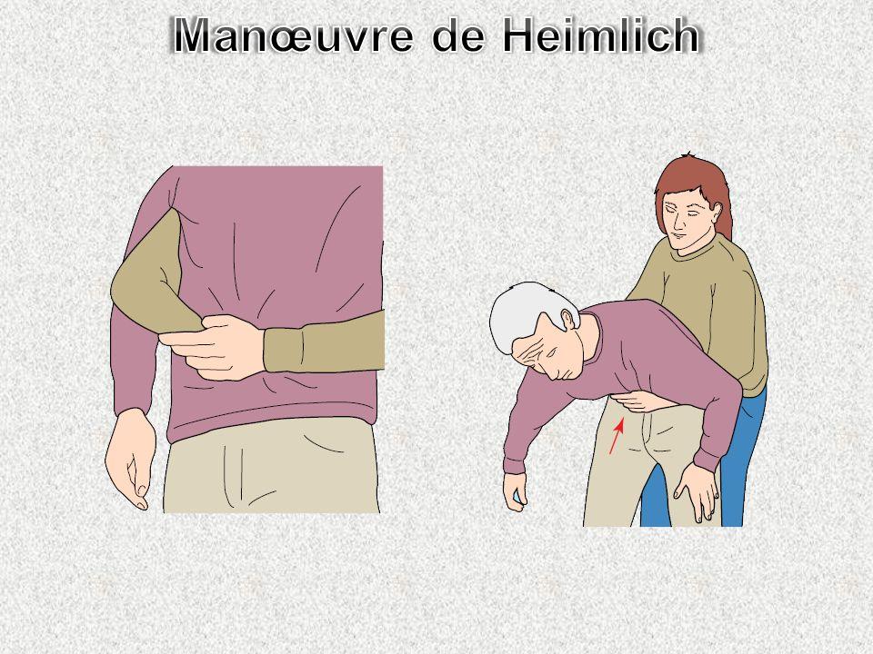 Manœuvre de Heimlich