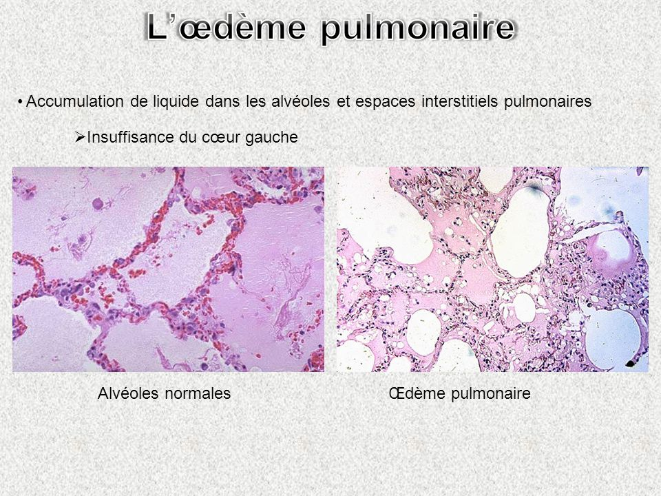 L'œdème pulmonaire Accumulation de liquide dans les alvéoles et espaces interstitiels pulmonaires. Insuffisance du cœur gauche.