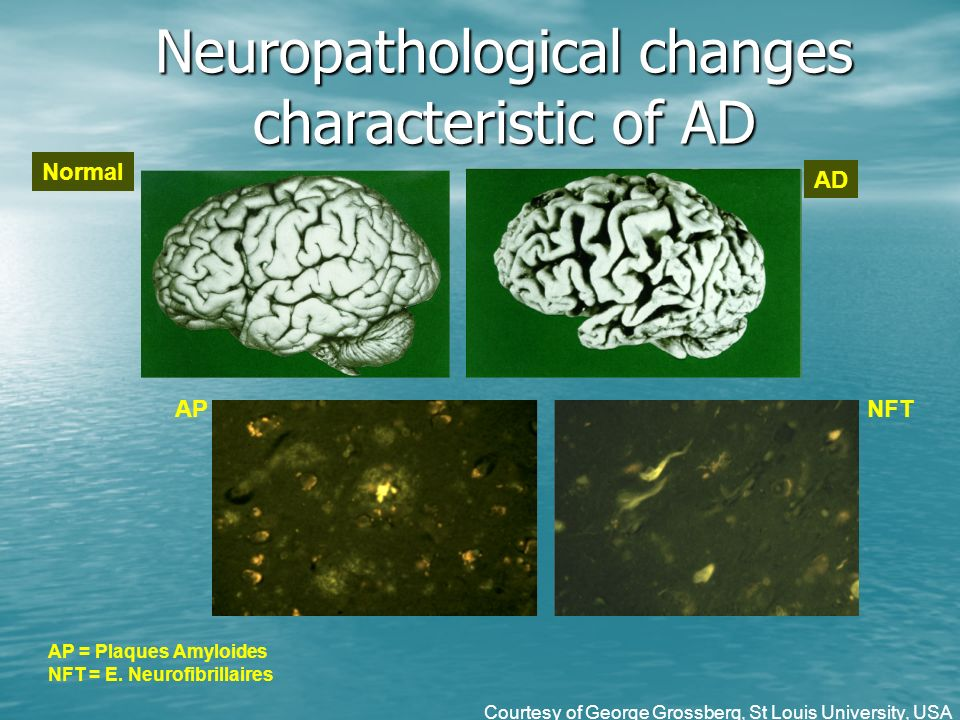 Neuropathological changes characteristic of AD