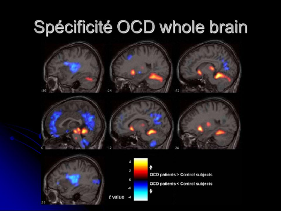Spécificité OCD whole brain
