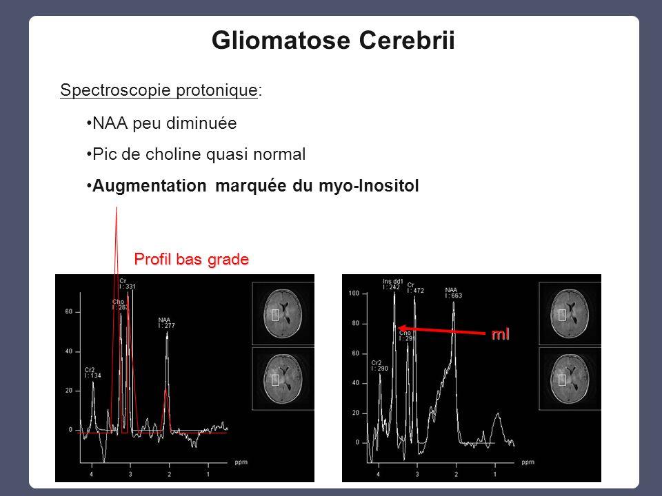 Spectroscopie protonique: