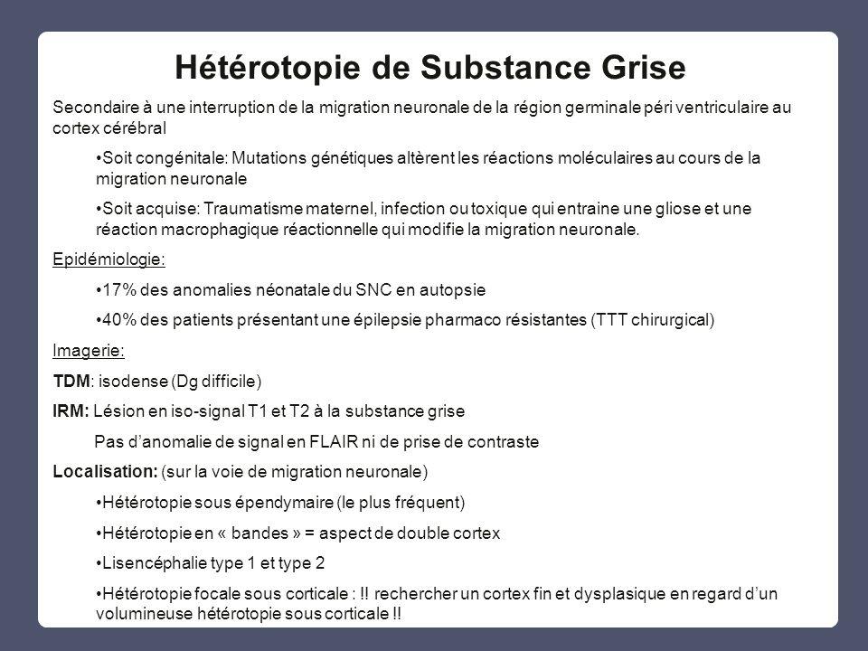 Hétérotopie de Substance Grise