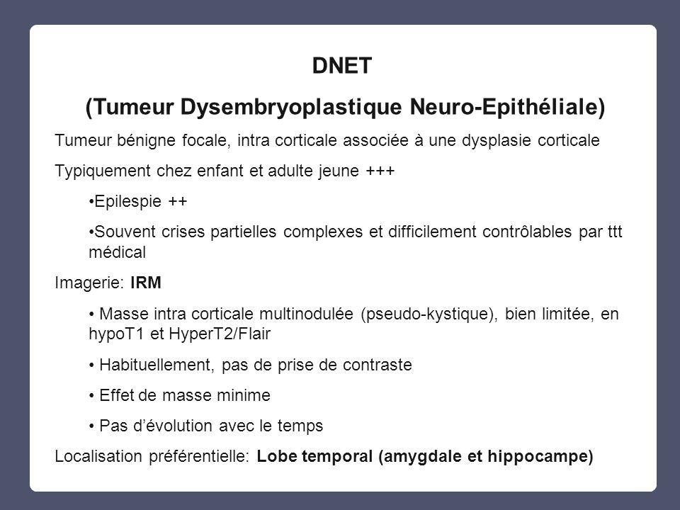(Tumeur Dysembryoplastique Neuro-Epithéliale)
