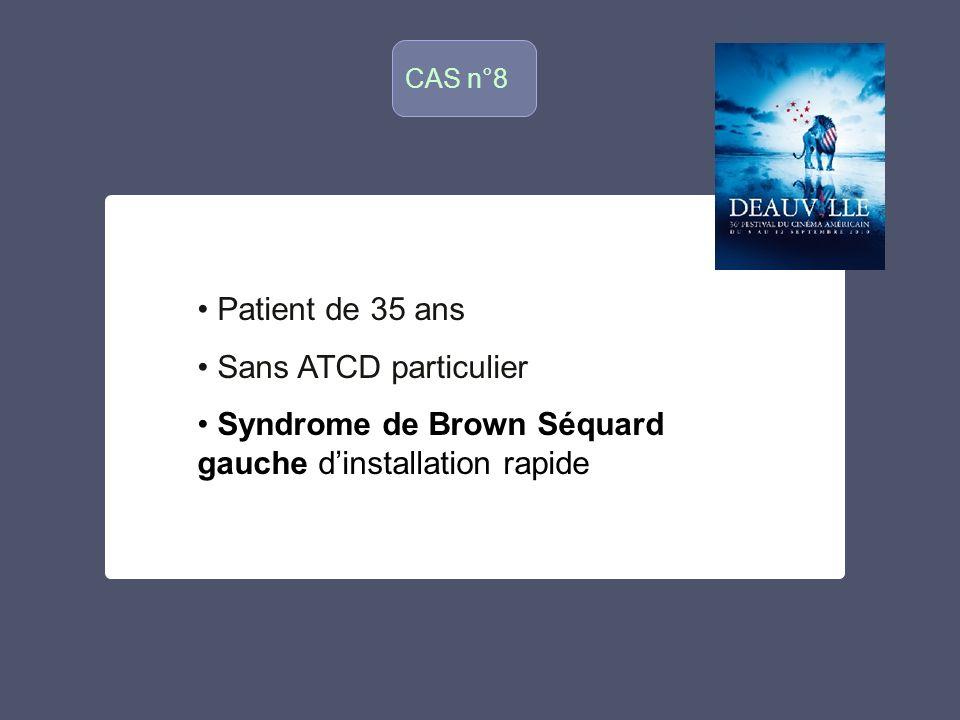 Syndrome de Brown Séquard gauche d'installation rapide