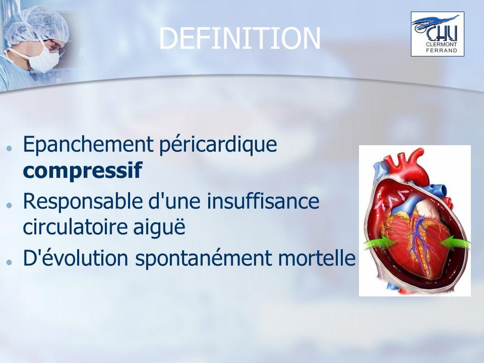 DEFINITION Epanchement péricardique compressif