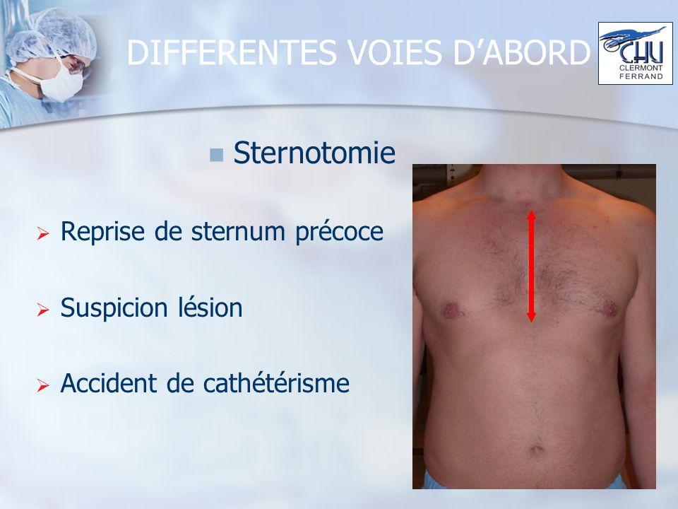 DIFFERENTES VOIES D'ABORD
