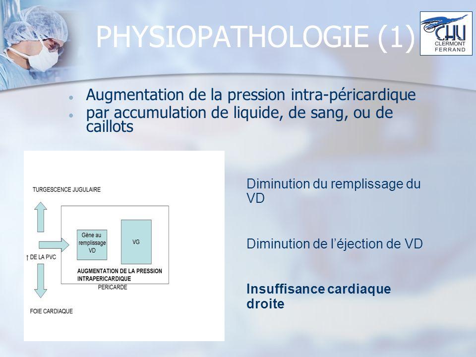 PHYSIOPATHOLOGIE (1) Augmentation de la pression intra-péricardique