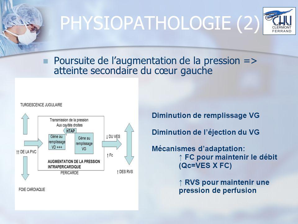 PHYSIOPATHOLOGIE (2) Poursuite de l'augmentation de la pression => atteinte secondaire du cœur gauche.