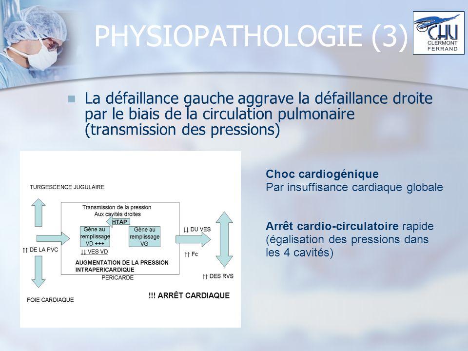PHYSIOPATHOLOGIE (3) La défaillance gauche aggrave la défaillance droite par le biais de la circulation pulmonaire (transmission des pressions)