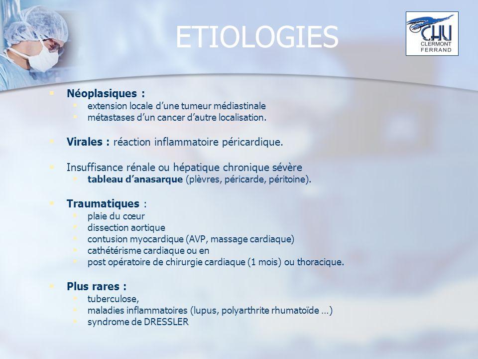ETIOLOGIES Néoplasiques :