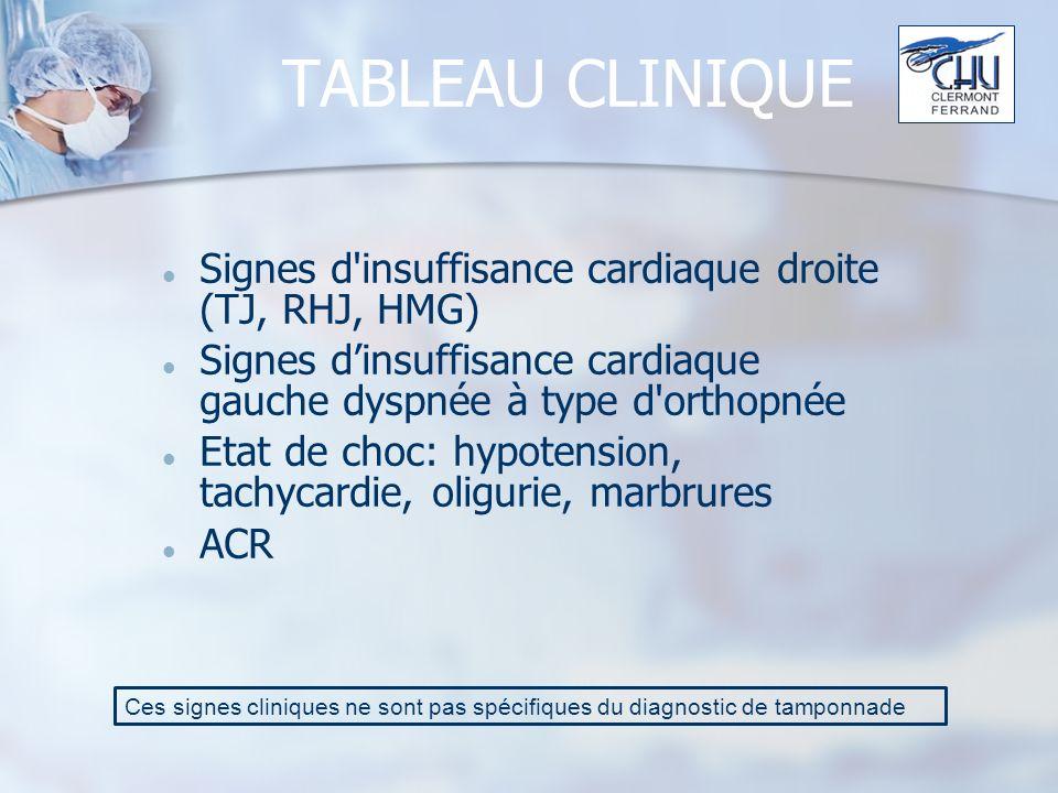 TABLEAU CLINIQUE Signes d insuffisance cardiaque droite (TJ, RHJ, HMG)