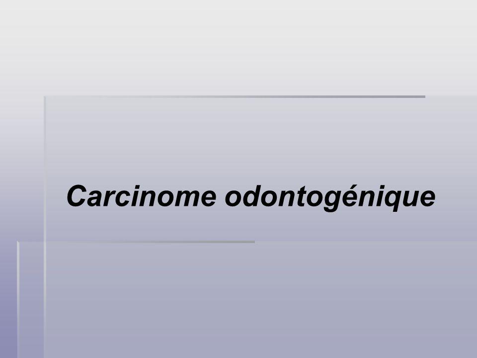 Carcinome odontogénique
