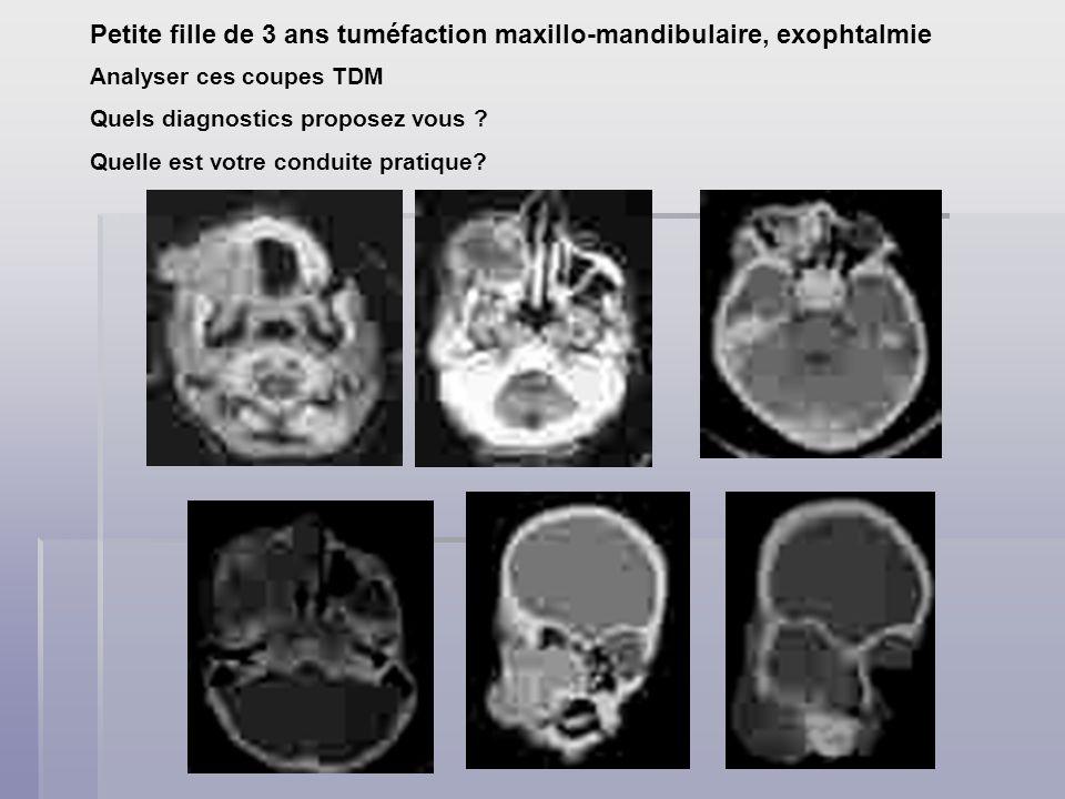 Petite fille de 3 ans tuméfaction maxillo-mandibulaire, exophtalmie