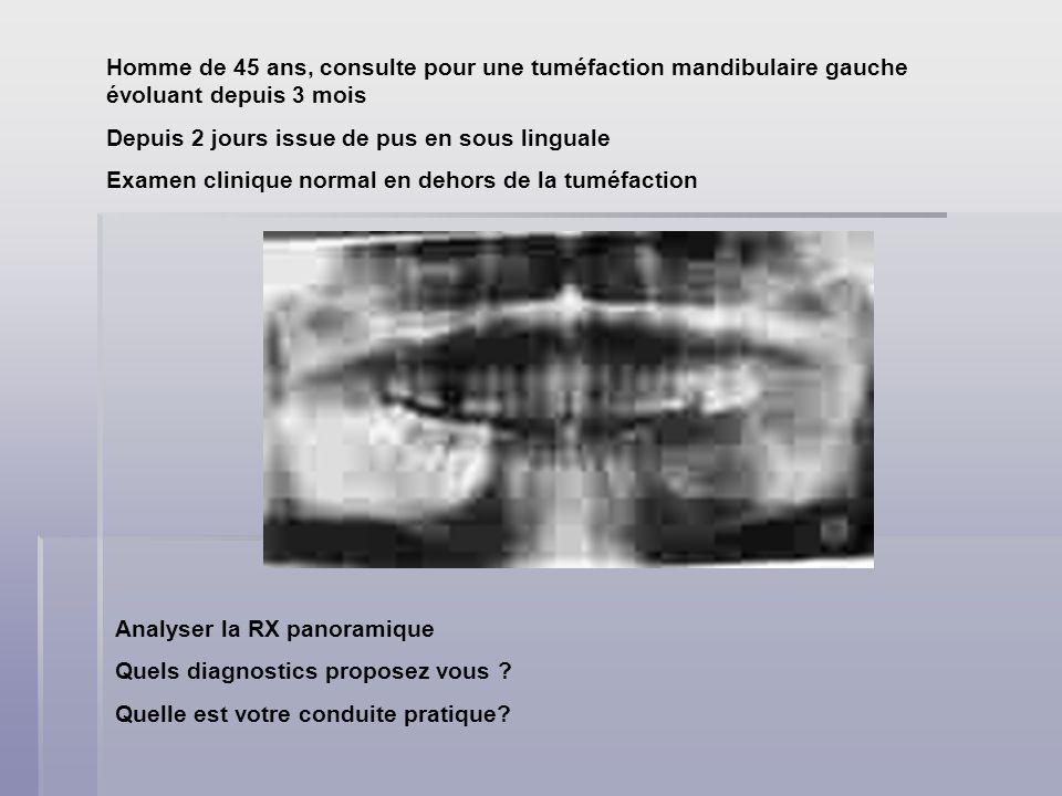Homme de 45 ans, consulte pour une tuméfaction mandibulaire gauche évoluant depuis 3 mois