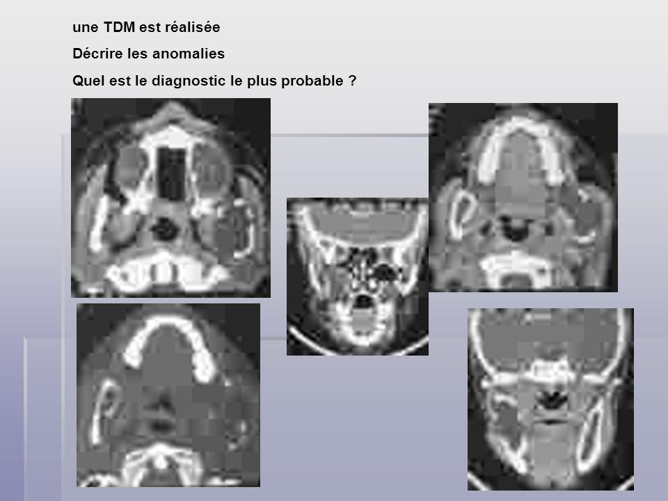 une TDM est réalisée Décrire les anomalies Quel est le diagnostic le plus probable