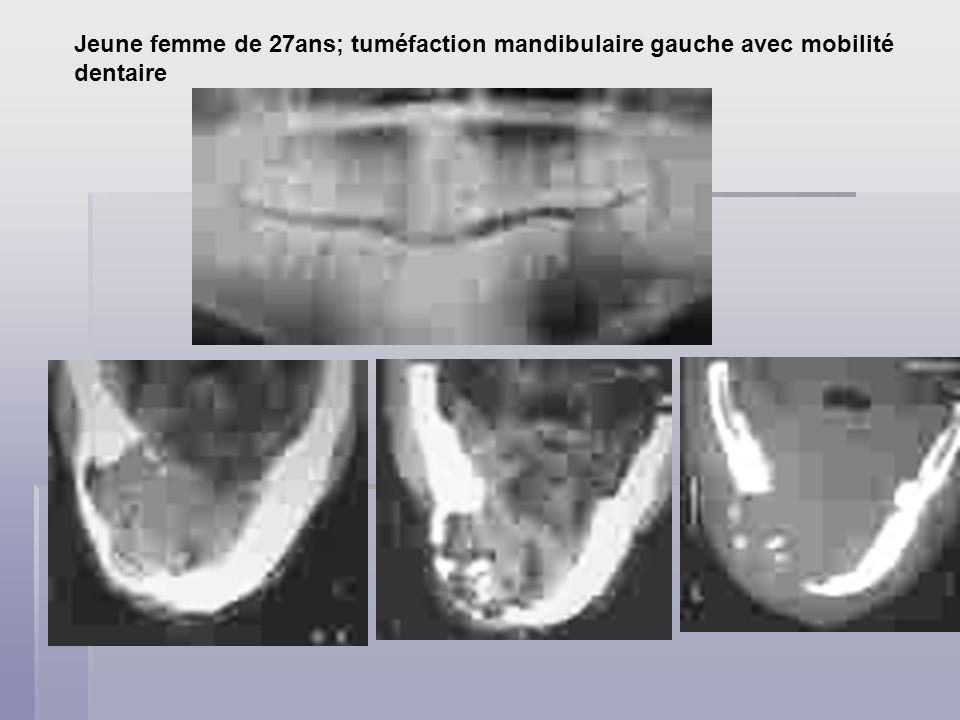 Jeune femme de 27ans; tuméfaction mandibulaire gauche avec mobilité dentaire