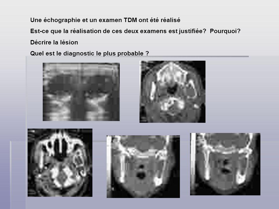Une échographie et un examen TDM ont été réalisé