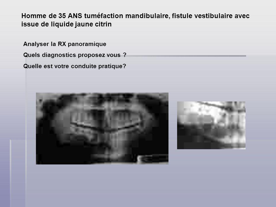 Homme de 35 ANS tuméfaction mandibulaire, fistule vestibulaire avec issue de liquide jaune citrin