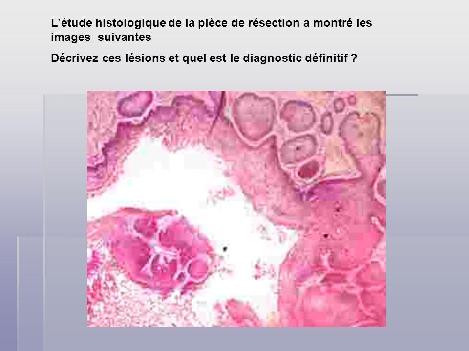 Décrivez ces lésions et quel est le diagnostic définitif