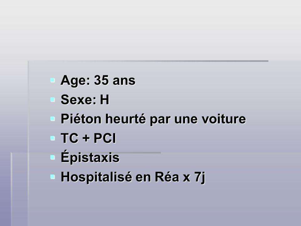 Age: 35 ans Sexe: H Piéton heurté par une voiture TC + PCI Épistaxis Hospitalisé en Réa x 7j