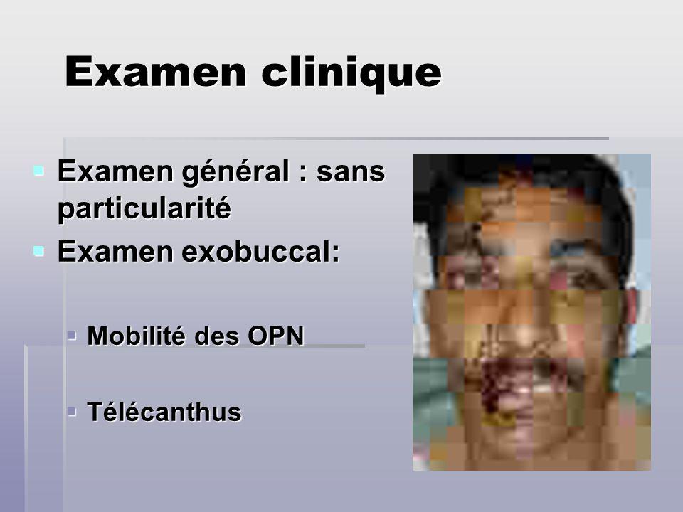 Examen clinique Examen général : sans particularité Examen exobuccal: