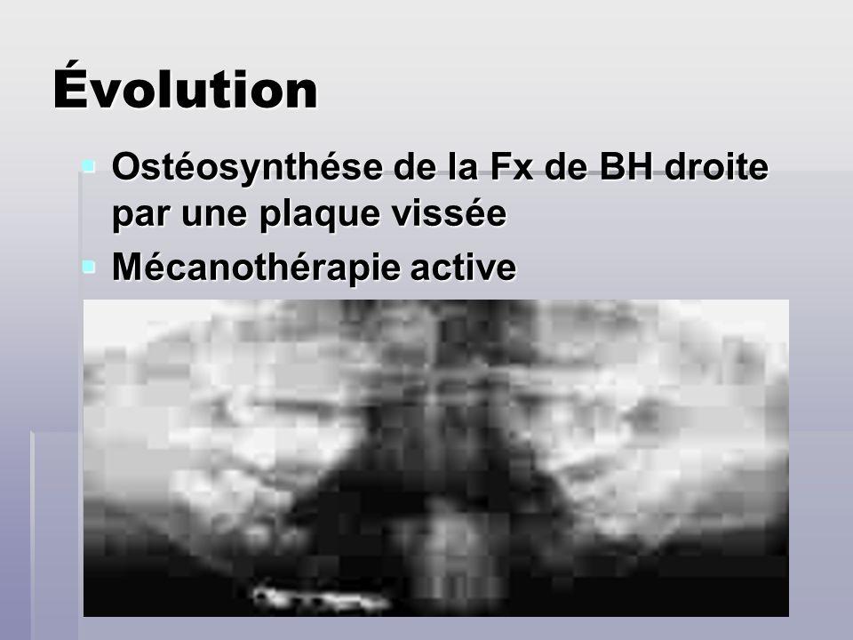 Évolution Ostéosynthése de la Fx de BH droite par une plaque vissée