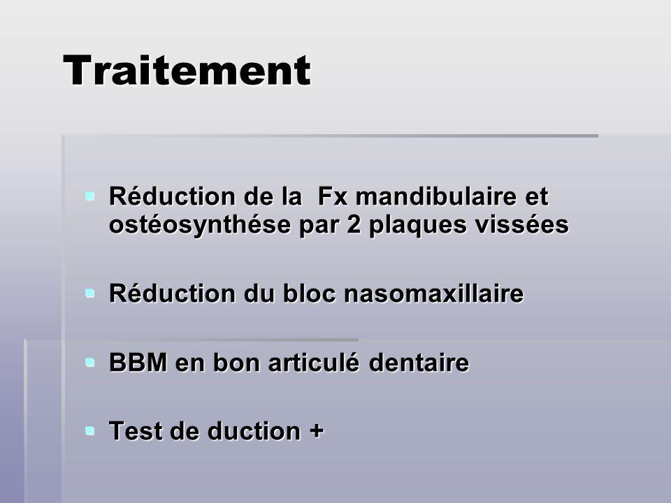 Traitement Réduction de la Fx mandibulaire et ostéosynthése par 2 plaques vissées. Réduction du bloc nasomaxillaire.