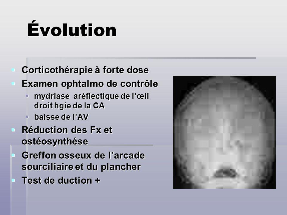 Évolution Corticothérapie à forte dose Examen ophtalmo de contrôle