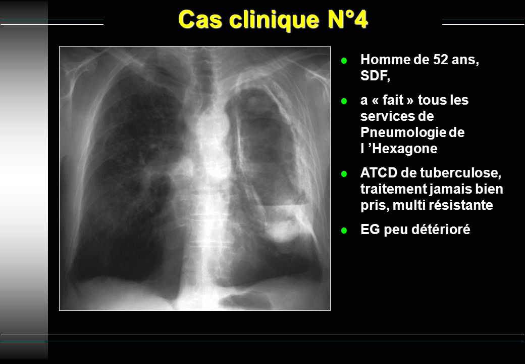 Cas clinique N°4 Homme de 52 ans, SDF,