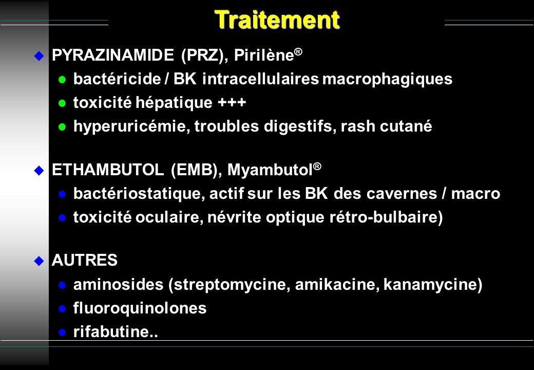 Traitement PYRAZINAMIDE (PRZ), Pirilène®