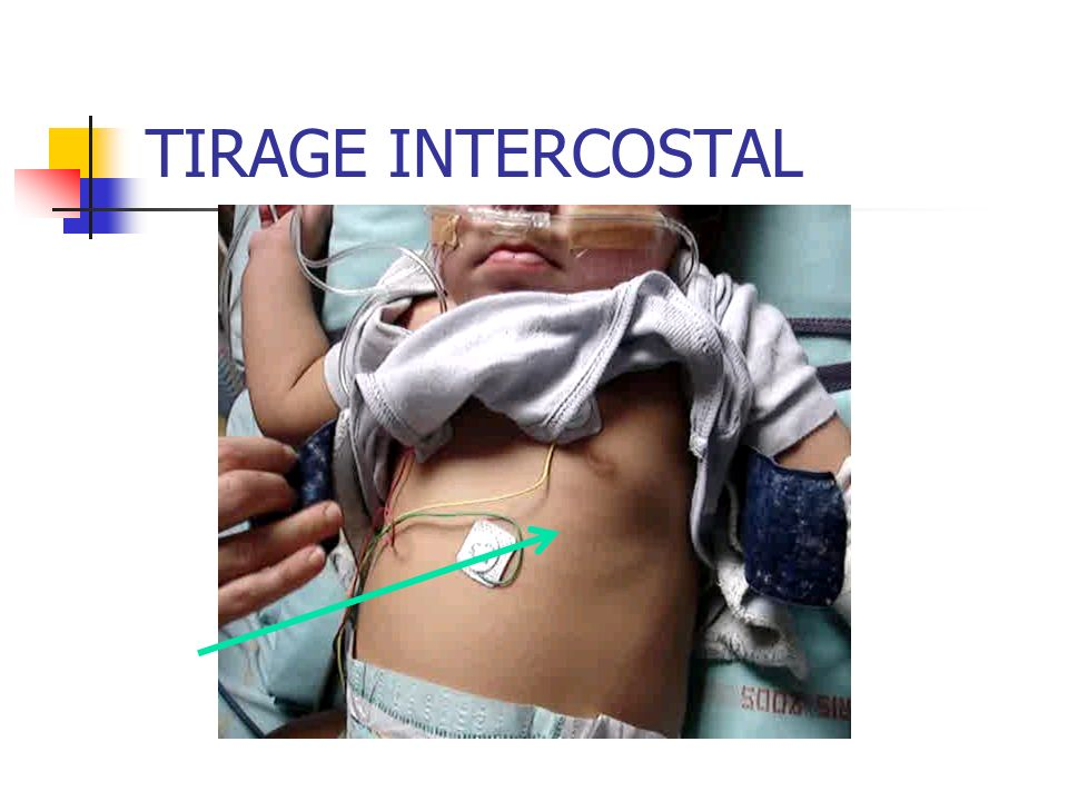 TIRAGE INTERCOSTAL