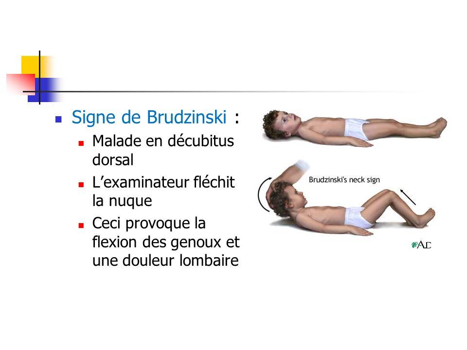 Signe de Brudzinski : Malade en décubitus dorsal