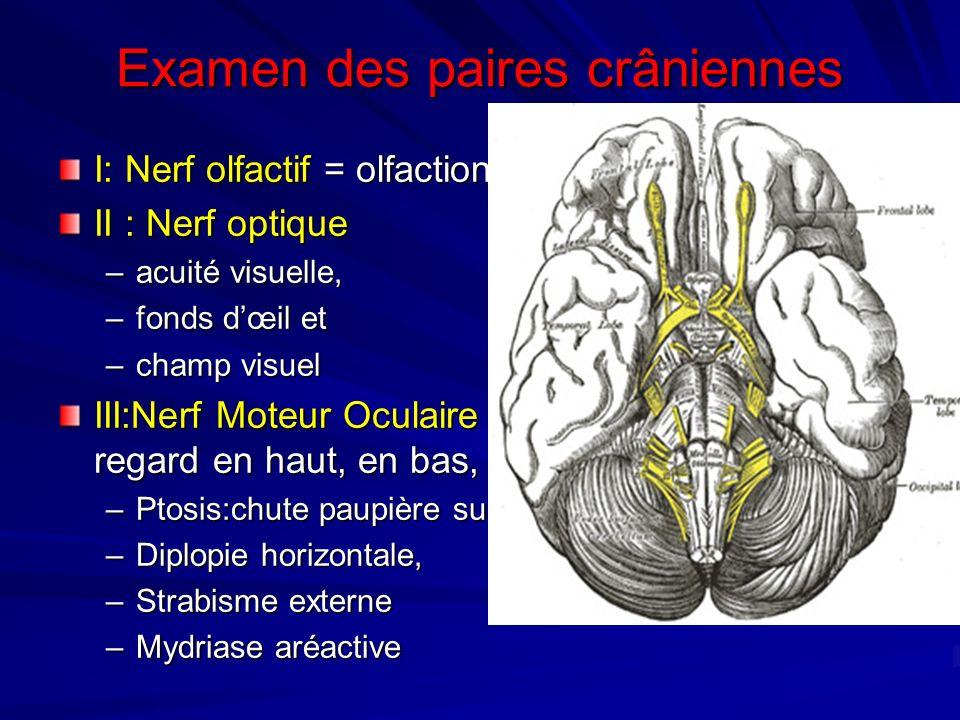 Examen des paires crâniennes