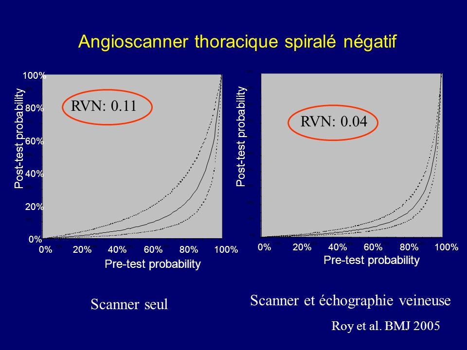 Angioscanner thoracique spiralé négatif