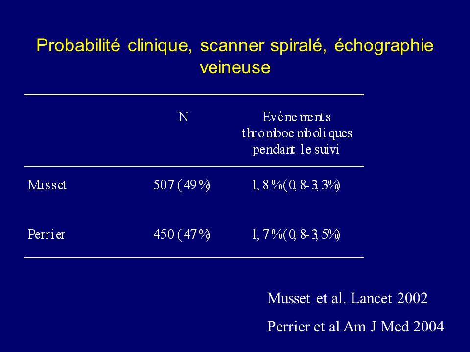 Probabilité clinique, scanner spiralé, échographie veineuse