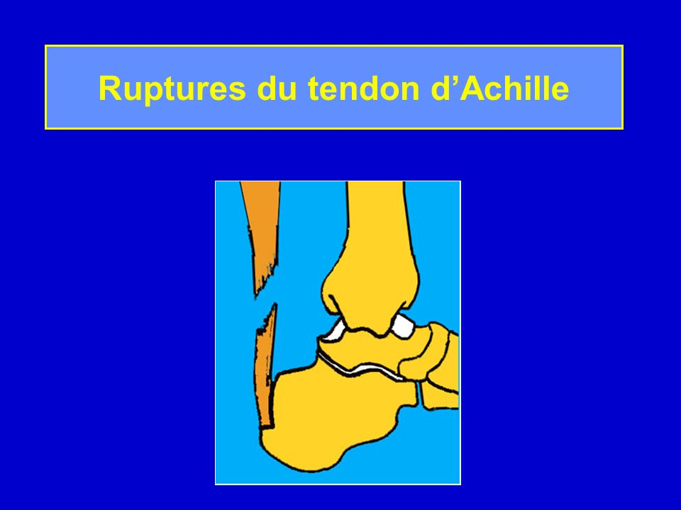 Ruptures du tendon d'Achille